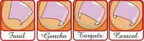 exemplos-unhas-ungueal