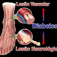 pe-diabetico-lesao